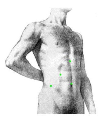 Увеличение груди андрей малахов